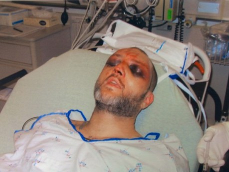 This photo provided by the Washington County Hospital shows the bruising on Kenneth Davis' face that he alleges were inflicted by correctional officers at the Roxbury Correctional Institution near Hagerstown, Md., on March 8 and 9, 2008. Josh Hummer, a former state correctional officer, is the first among 15 indicted officers to go to trial on federal charges stemming from Davis' beating. (Washington County Hospital/Associated Press)