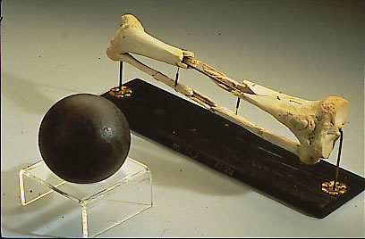Daniel Sickles' leg, along with a cannonball similar to the one that shattered it at Gettysburg, is on display at the National Museum of Health and Medicine in Silver Spring.